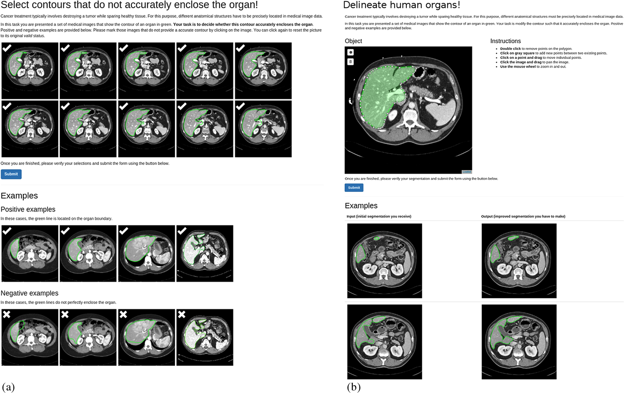 Large-scale medical image annotation with crowd-powered