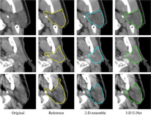 Evaluation of deep learning methods for parotid gland