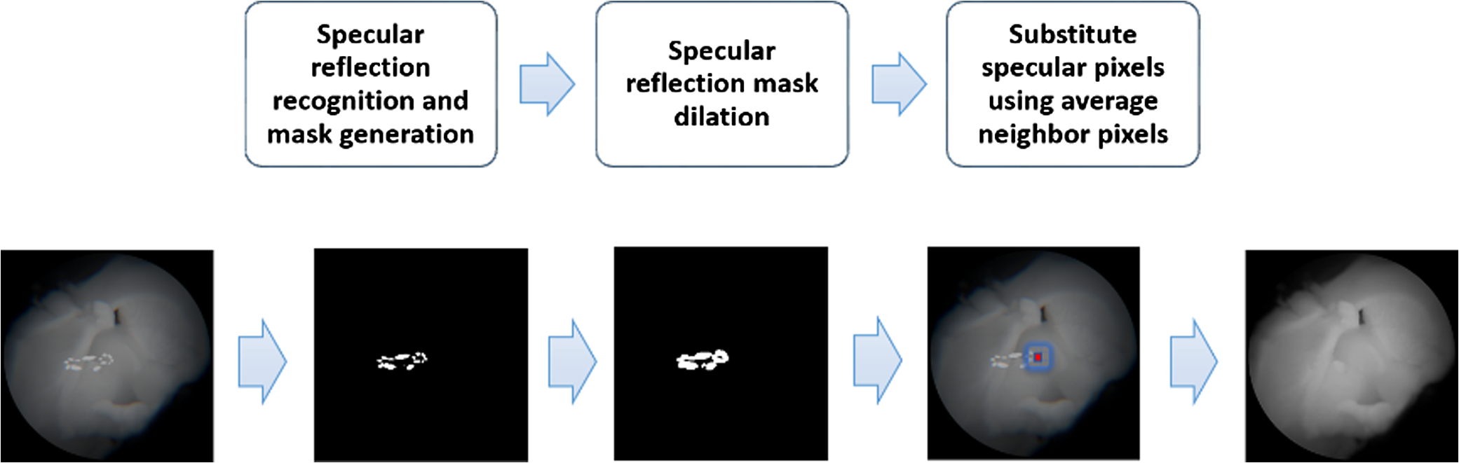 Calibration of fluorescence imaging for tumor surgical margin