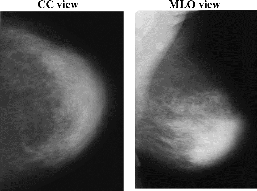 Breast Cancer Detection Using Synthetic Mammograms From Generative
