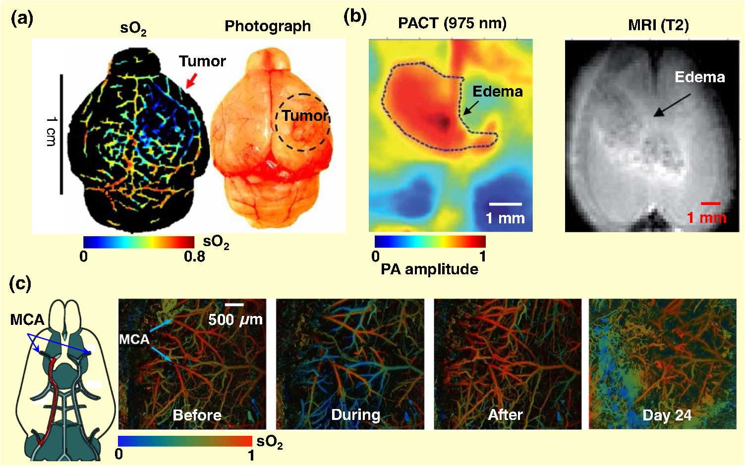 Photoacoustic Brain Imaging From Microscopic To Macroscopic Scales