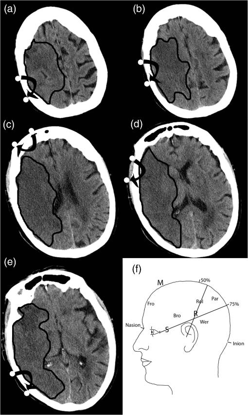 Near-infrared measurements of brain oxygenation in stroke