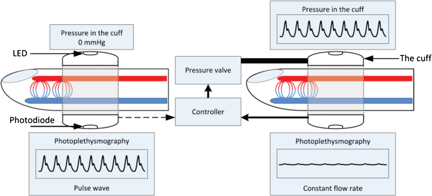 Cerebral Blood Flow And Autoregulation Current Measurement Diagram 88 The Internal Structure Through Heart Flows In Out Of Arterial Compartment Are Same Constant Rate Figure Reproduced From Ref 139 With Permission