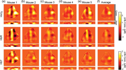 Structured illumination diffuse optical tomography for noninvasive