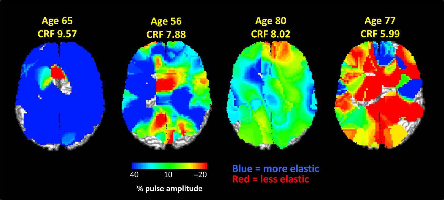 From Brain To Blood Vessels And Back A Noninvasive Optical Imaging Similar Results Simple Diagram 505 Maps Of The Arterial Pulse Relaxation Function Obtained With Diffuse Methods In Four Healthy Adults Varying Age Crf