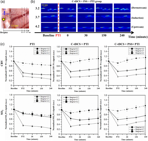 Integrated treatment modality of cathodal-transcranial direct ...