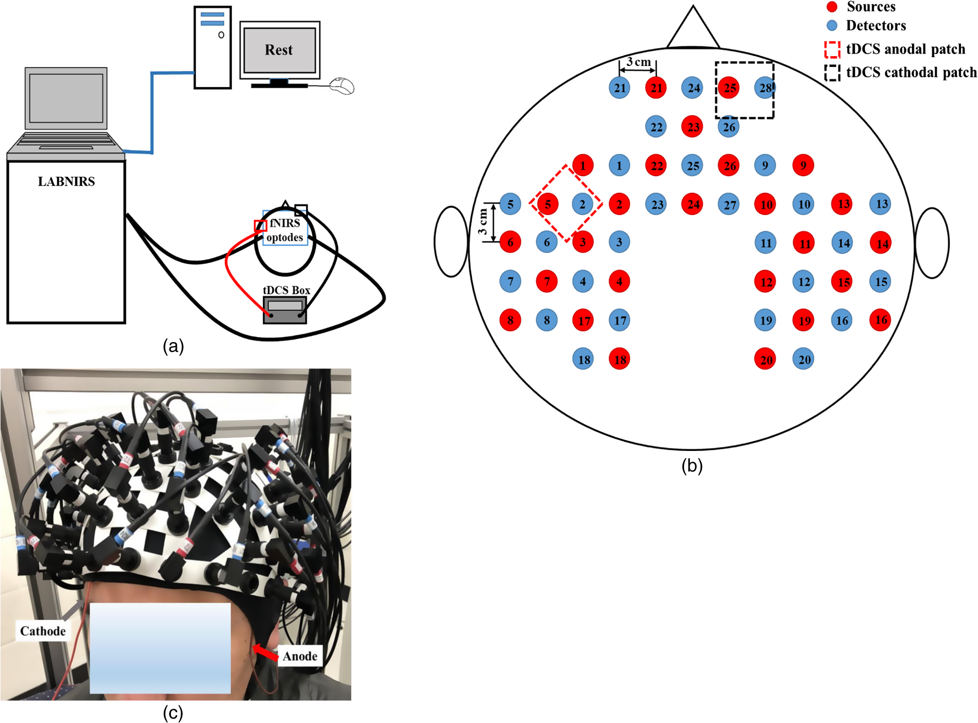 Modulating The Resting State Functional Connectivity Patterns Of Dc Wiring Diagram For Atlas Point Motor Gray Arrow Points To Wire Connecting Cathode Patch And Red Anode