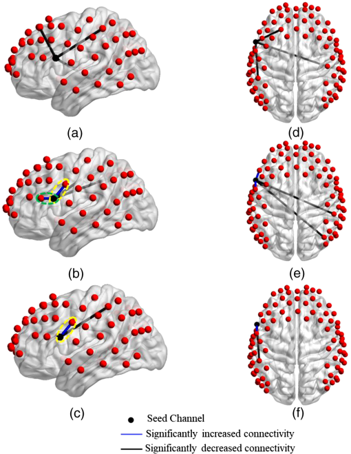 Modulating the resting-state functional connectivity