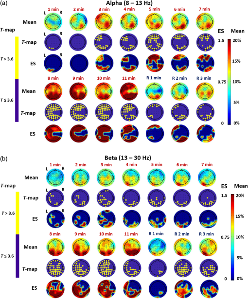 Transcranial photobiomodulation with 1064-nm laser modulates brain