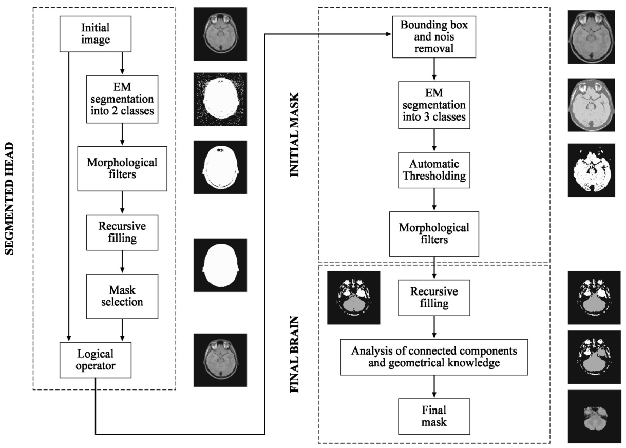 Method To Segment The Brain Automatically Applied A Magnetic Pentium 2 Block Diagram Of Procedure Interactive Segmentation