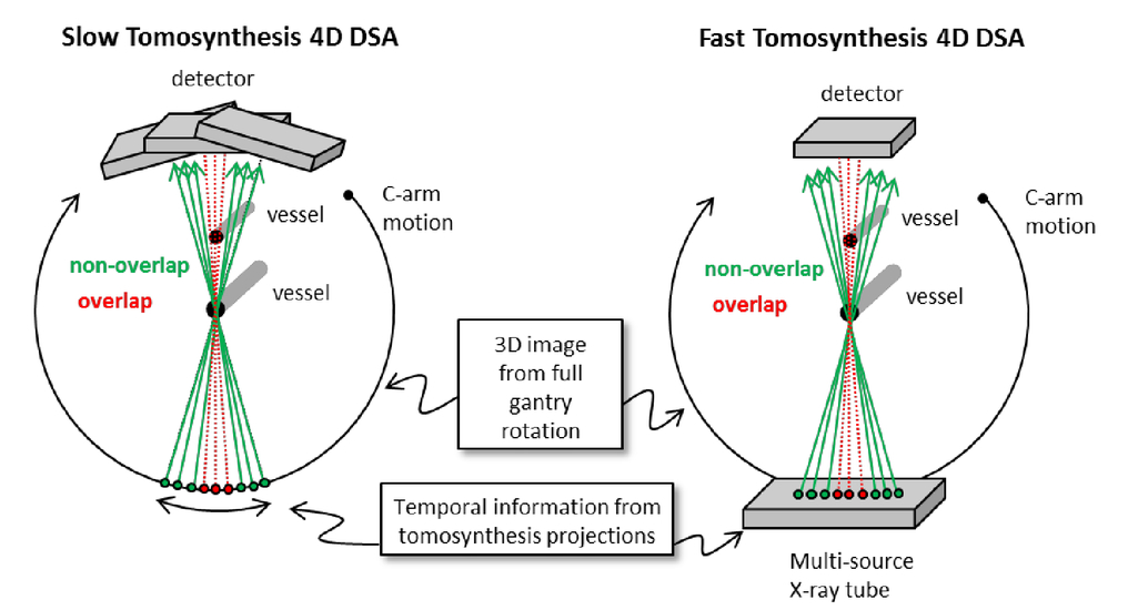tomosynthesis reconstruction Digital breast tomosynthesis (dbt) is an emerging imaging modality which produces three-dimensional radiographic images of breast dbt reconstructs tomographic images from a limited view angle, thus data acquired from dbt is not sufficient enough to reconstruct an exact image.
