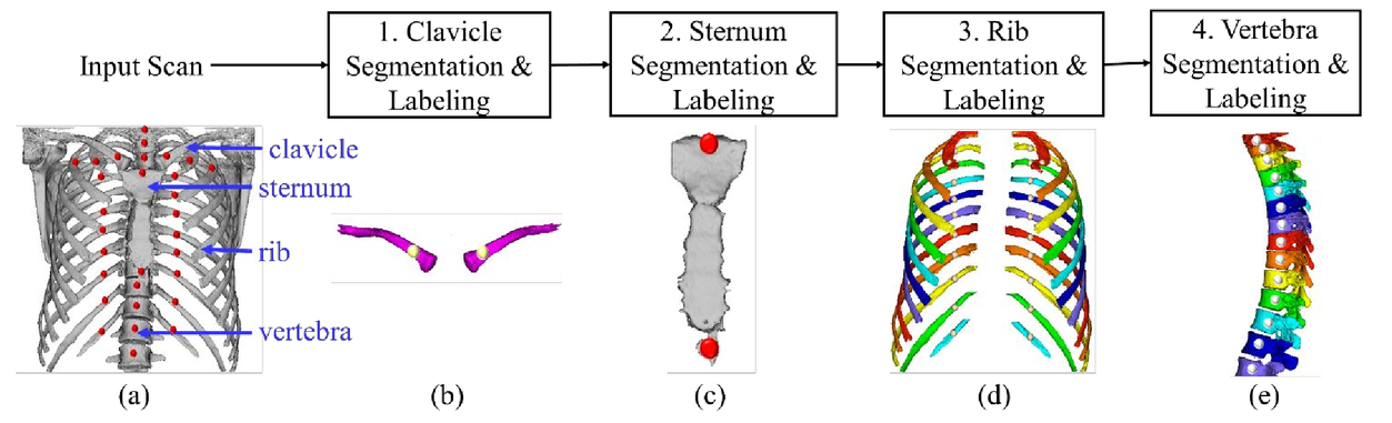 Individual Bone Structure Segmentation And Labeling From Low Dose
