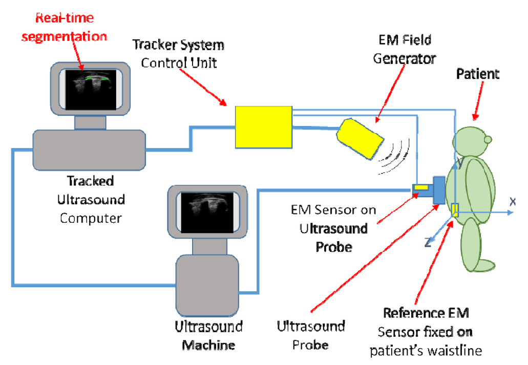 Localization Of The Transverse Processes In Ultrasound For Spinal