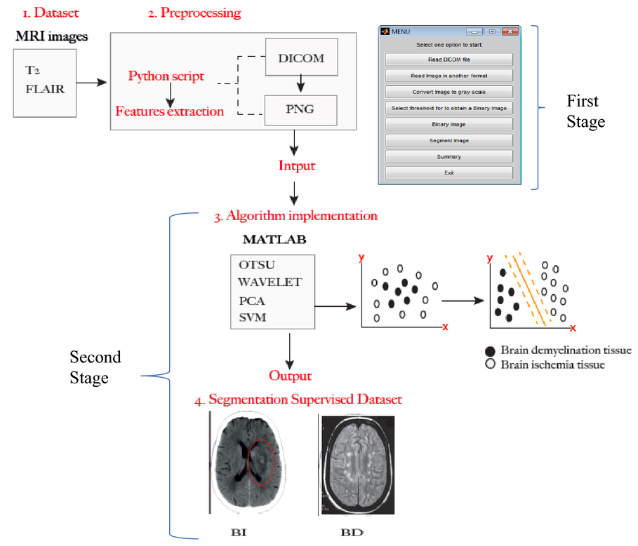 Demyelinating and ischemic brain diseases: detection