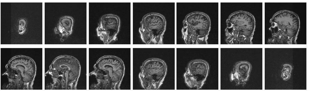 Automatic tissue image segmentation based on image processing and