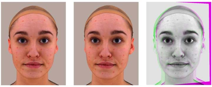 Automated facial acne assessment from smartphone images