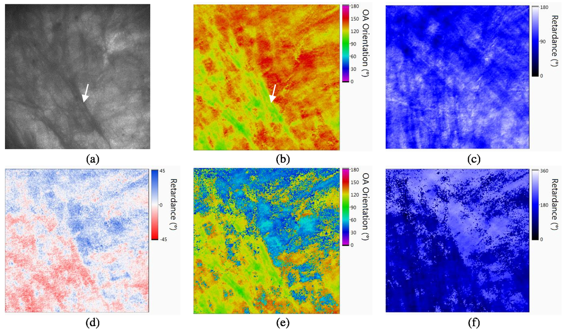 Extended depth measurement for a Stokes sample imaging