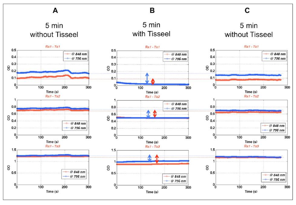 In vivo near infrared (NIRS) sensor attachment using fibrin
