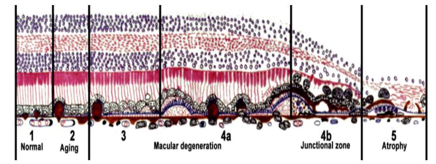 Confocal retinal imaging using a digital light projector