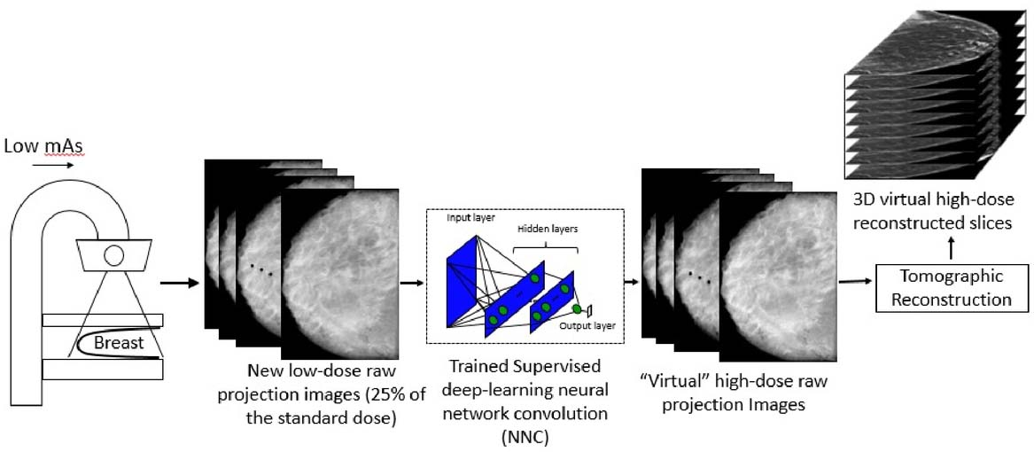 Radiation dose reduction in digital breast tomosynthesis