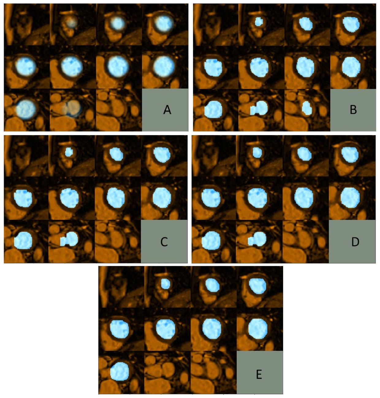 Cine cardiac MRI slice misalignment correction towards full