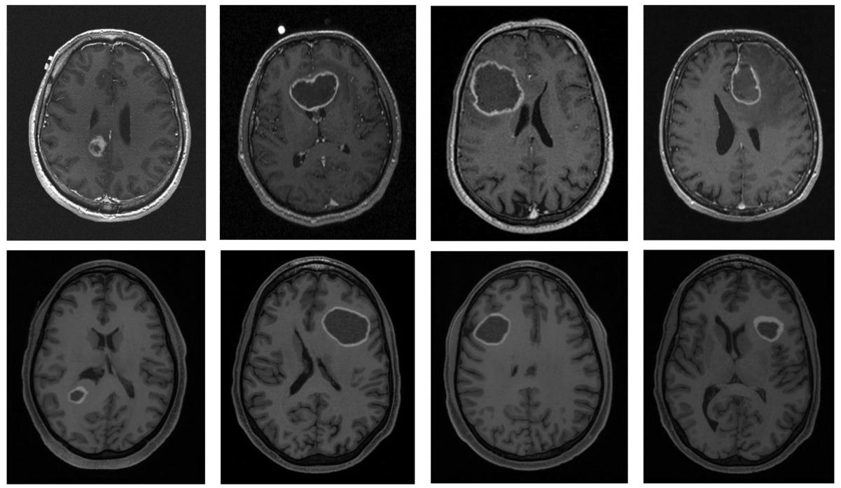 TuMore: generation of synthetic brain tumor MRI data for