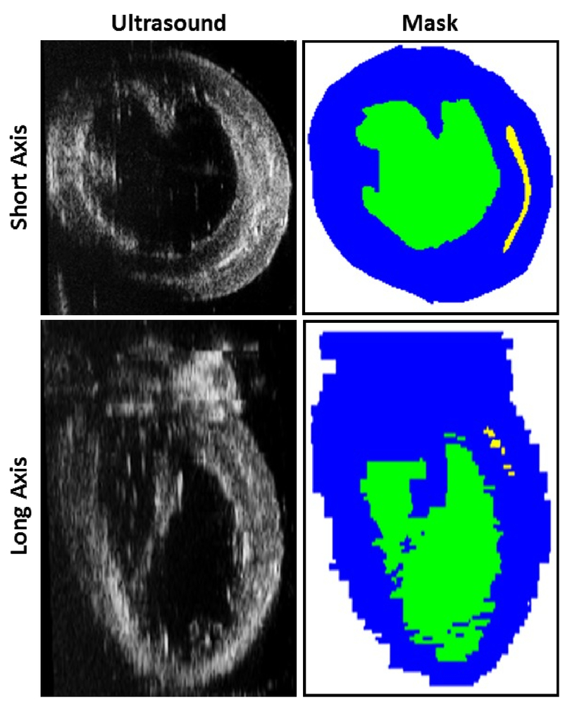 Ultrasound segmentation of rat hearts using convolution