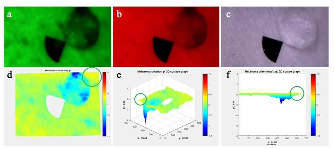 Quality enhancement of multispectral images for skin cancer optical