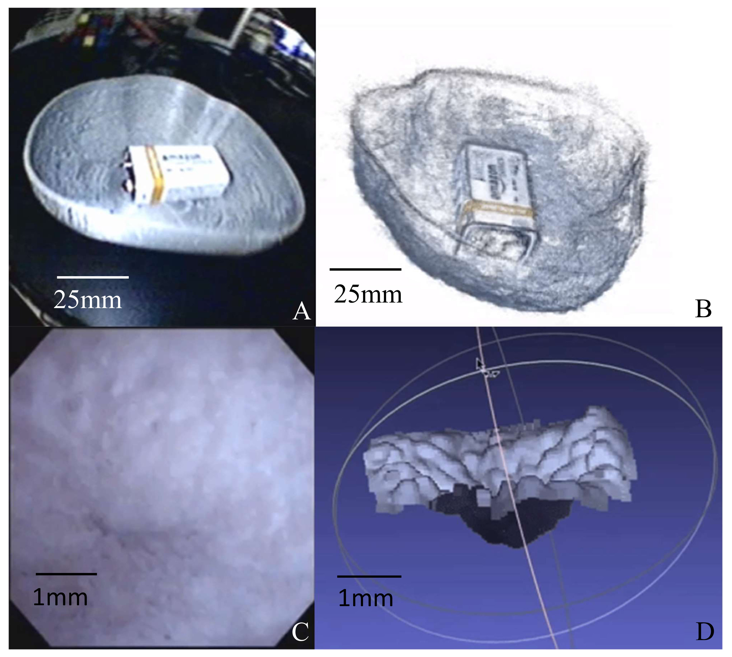 Innovative computer vision approach to 3D bladder model