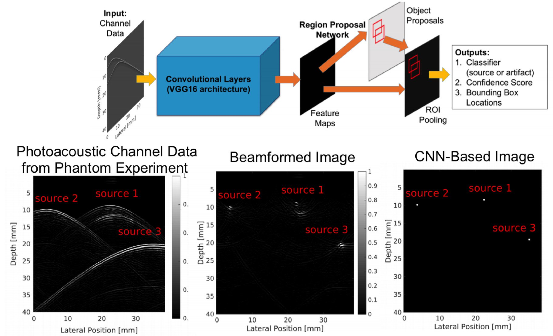 Deep learning the sound of light to guide surgeries