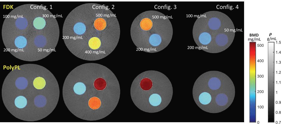 Quantitative cone-beam CT of bone mineral density using