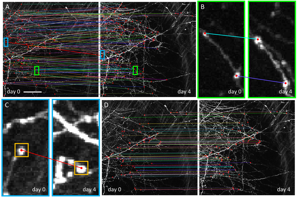 Accurate registration of in vivo time-lapse images