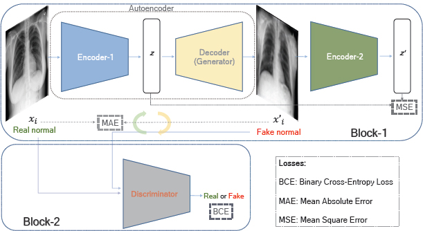 Deep adversarial one-class learning for normal and abnormal chest