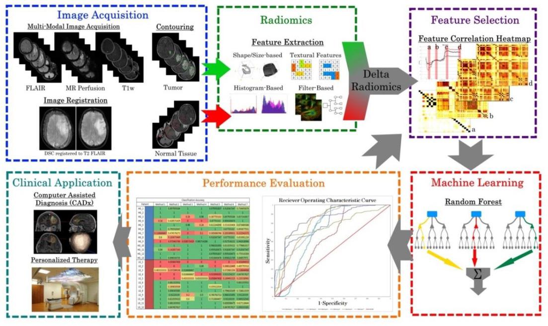 Machine-learning based classification of glioblastoma using dynamic