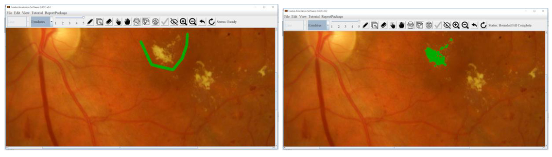 Fundus Analysis Software Tool (FAST): development of software