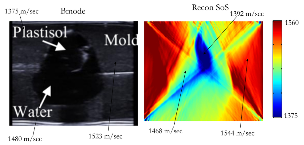 CNN and back-projection: limited angle ultrasound tomography