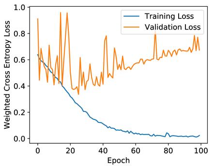 Detecting anomalies in longitudinal elevation of track