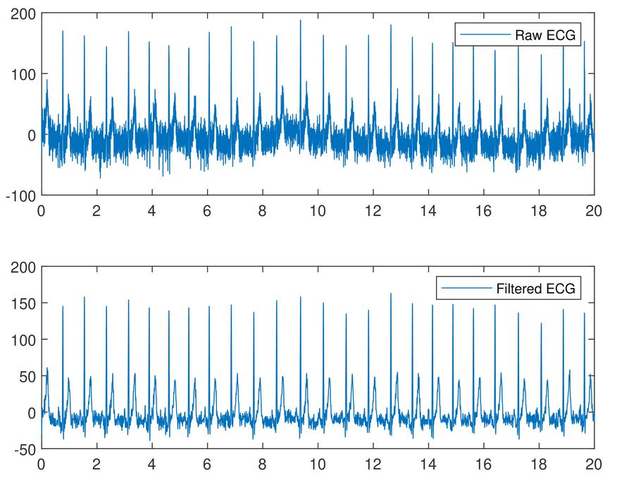 HeartID-based authentication for autonomous vehicles using