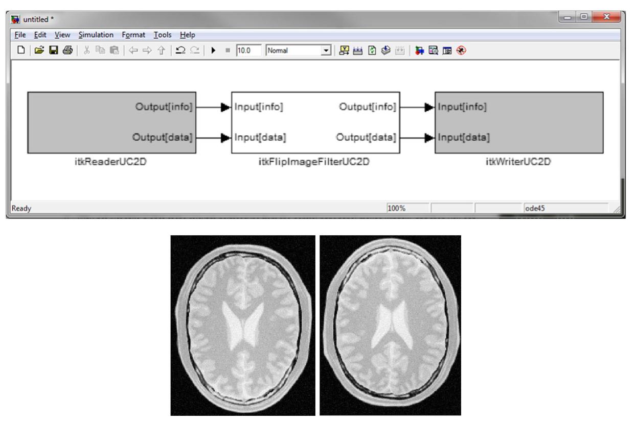 SimITK: model driven engineering for medical imaging