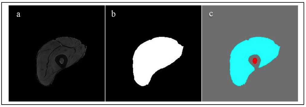 Atlas Registration Based Image Segmentation Of Mri Human Thigh