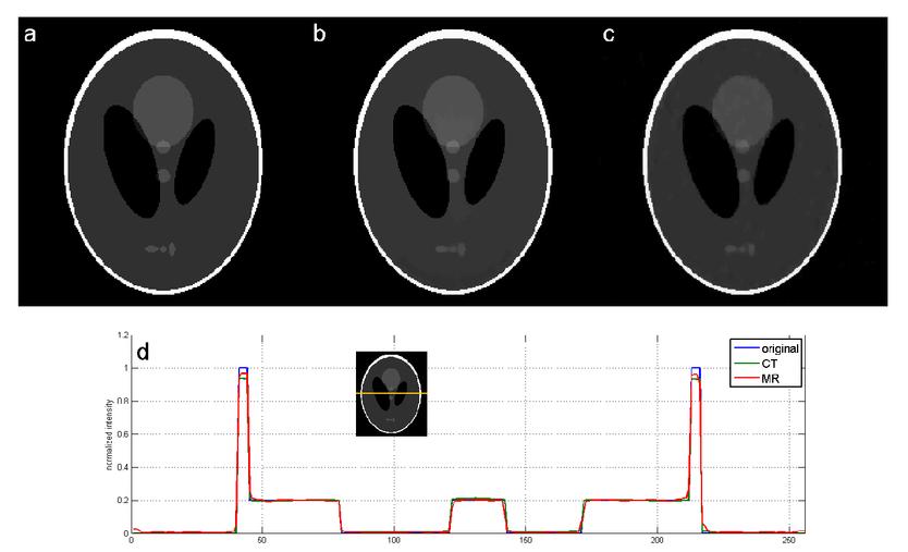 Total variation minimization-based multimodality medical image