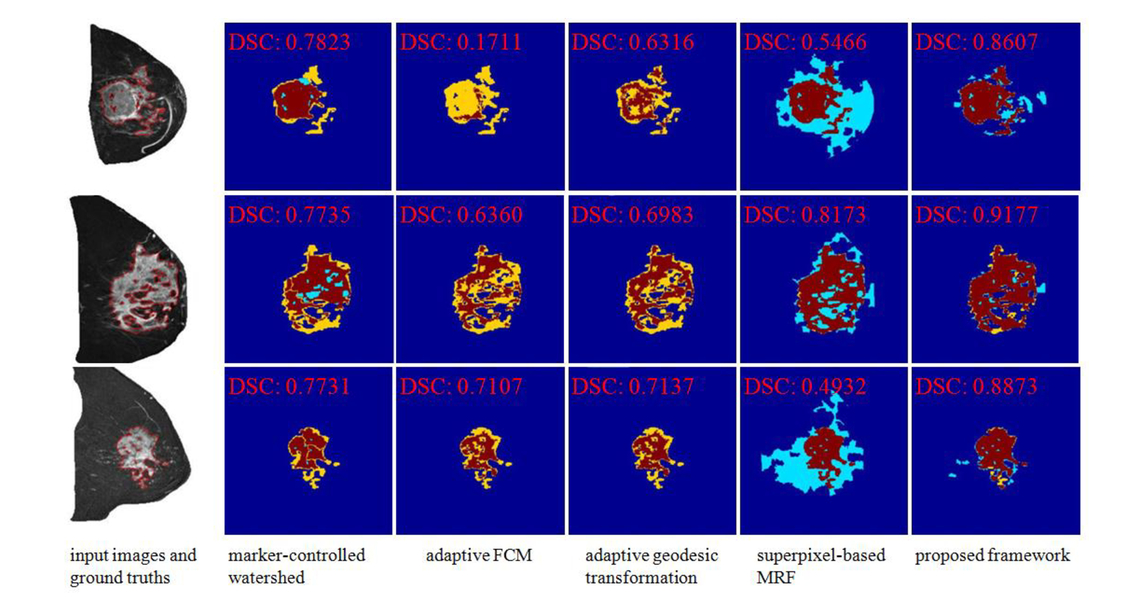 A superpixel-based framework for automatic tumor