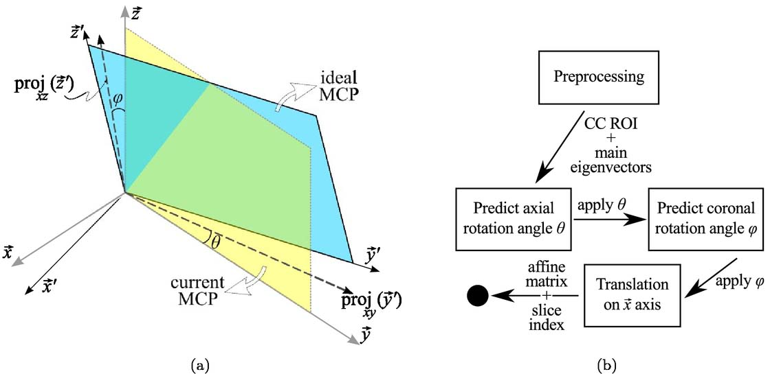 Mid-callosal plane determination using preferred directions