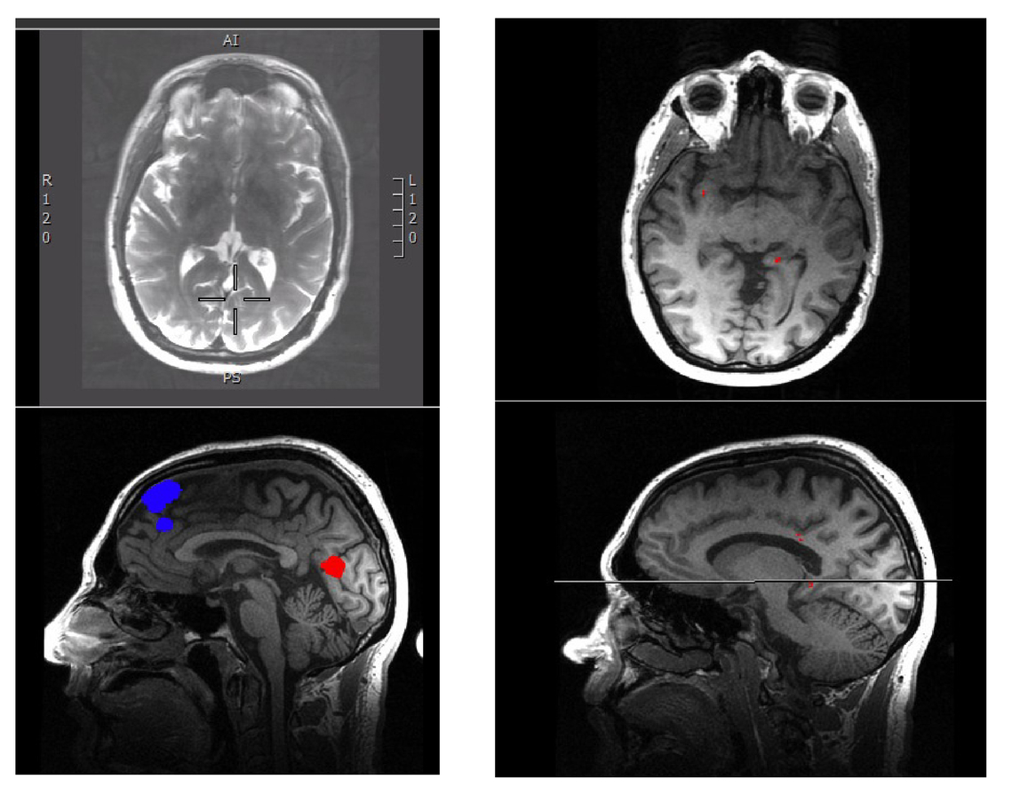 Integrating research and clinical neuroimaging for the