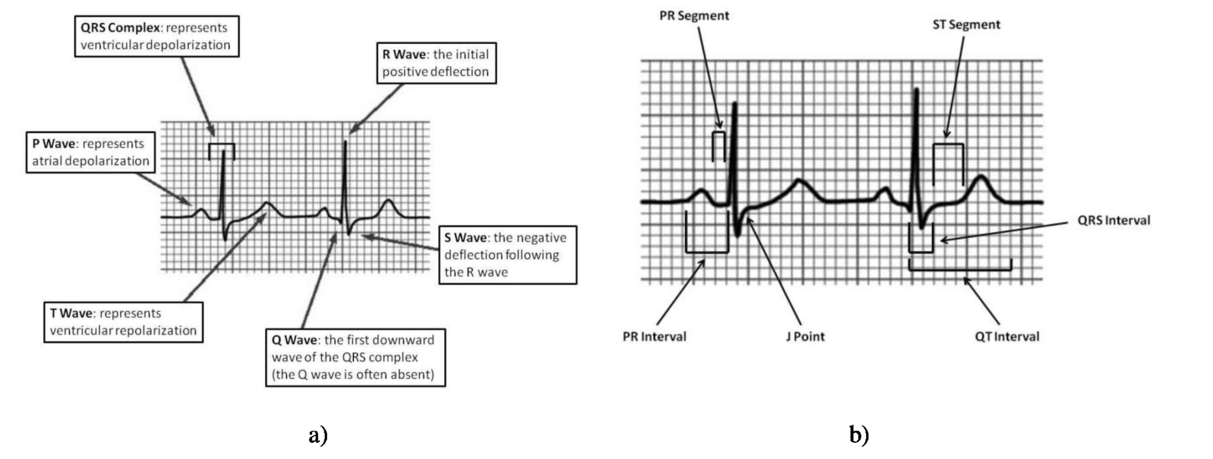 Assessment of heart rate variability based on mobile device