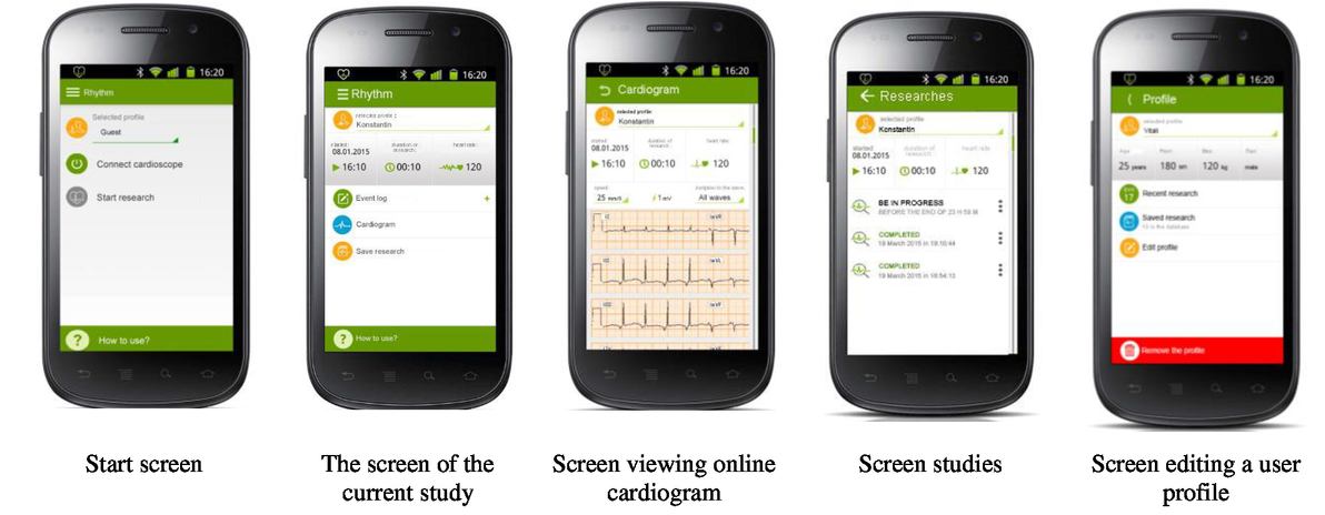Assessment of heart rate variability based on mobile device for 00021psisdg949794970zpage91g fandeluxe Images