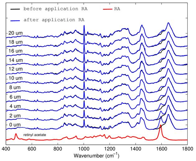 In vivo confocal Raman spectroscopy study of the vitamin A