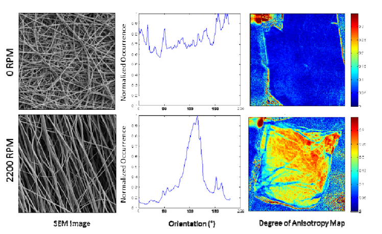 Polarized spatial frequency domain imaging of heart valve