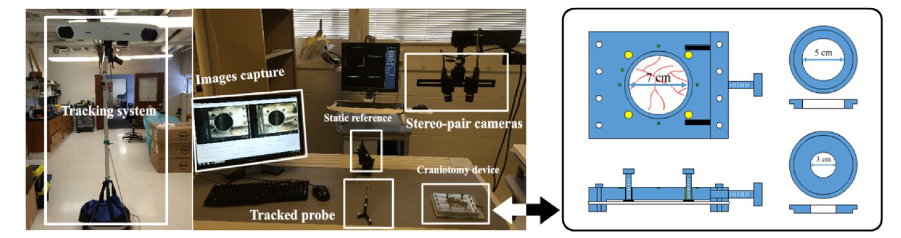 A Novel Craniotomy Simulation System For Evaluation Of Stereo Pair Reconstruction Fidelity And Tracking