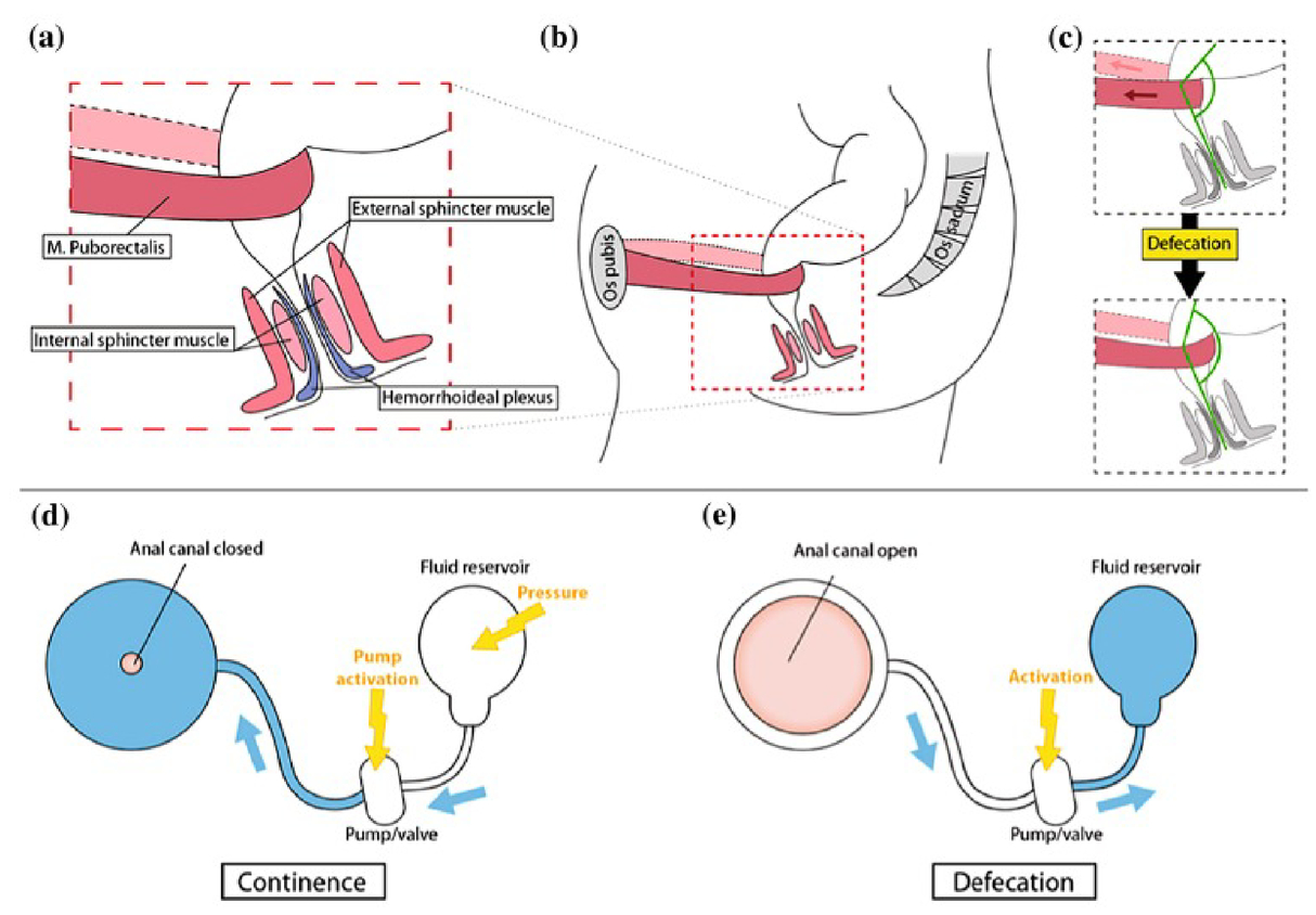 Biomimetic Artificial Sphincter Muscles Status And Challenges